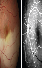 Conventional Retina Angiographies to be Digitised